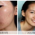 ニキビを治すためにも血糖値の安定を-皮膚科に頼らないニキビ改善法