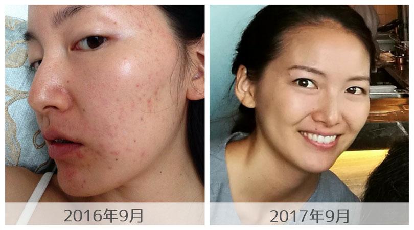 ニキビを治すためにも血糖値の安定を!皮膚科に頼らない私のニキビ改善方法-yumiid.com