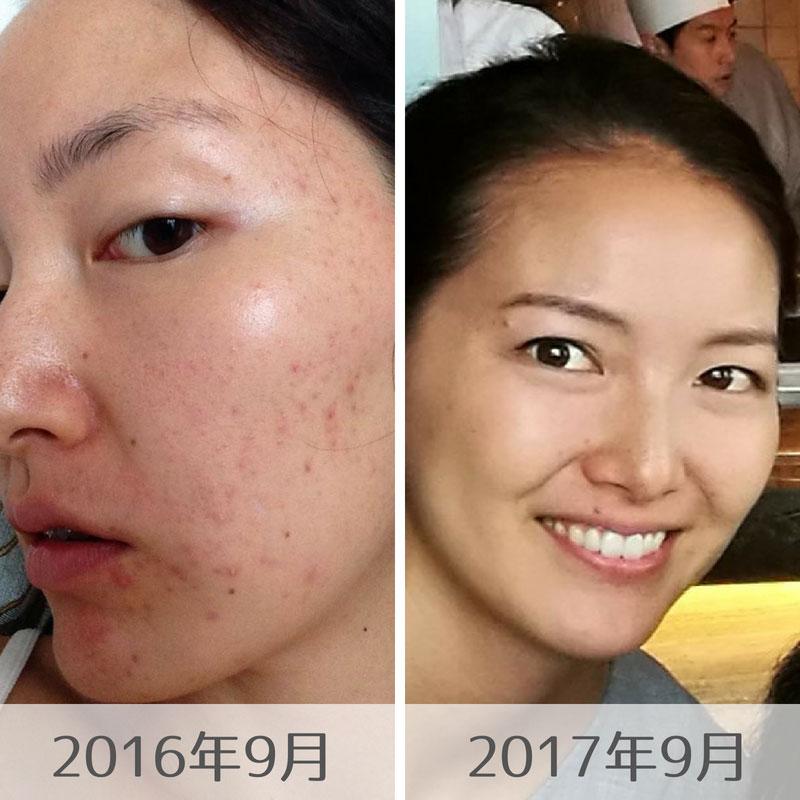 インスリンとアンドロゲン-ニキビを治すためにも血糖値の安定を!皮膚科に頼らない私のニキビ改善方法-yumiid.com