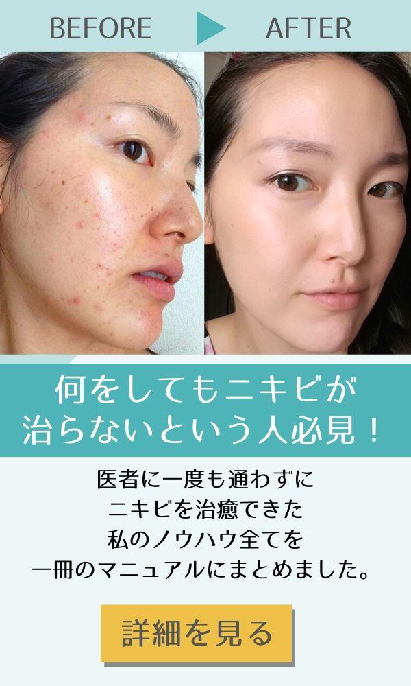 CLEAR NIKIBI MANUAL  CLEAR NIKIBI  MANUAL 医者や化粧品に頼っても  ダメだったニキビを  根本から見直す  完全マニュアル