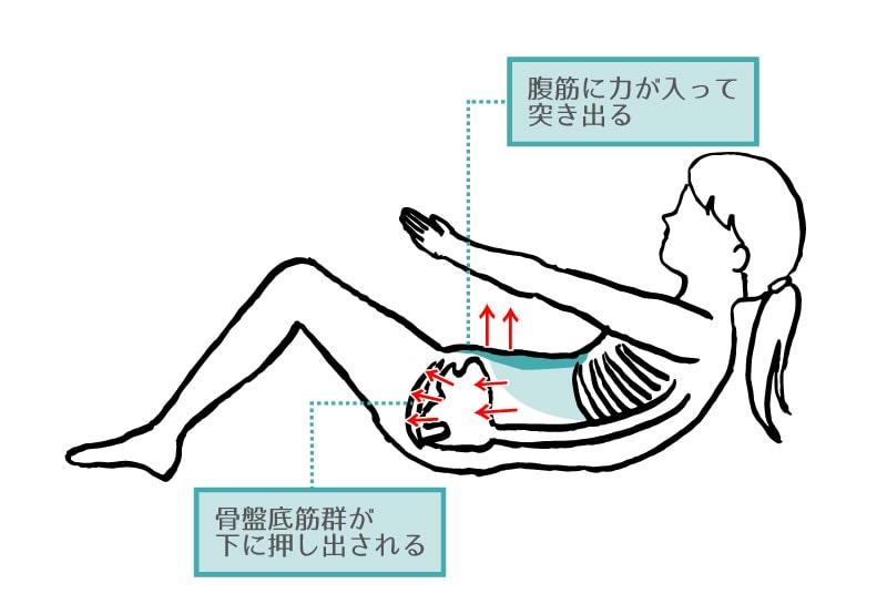 ドーミングと腹腔内圧、骨盤底筋群の関係 腹筋運動のやりすぎが尿もれの原因に?!腹筋トレーニング(クランチ)と骨盤底筋群、尿漏れの関係